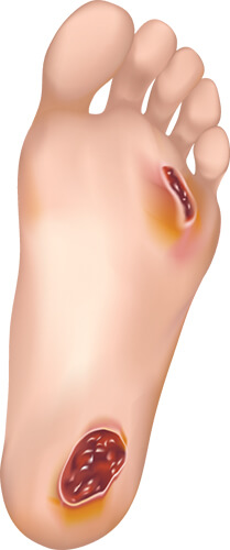 Foot_Ulcer_Image_Vector